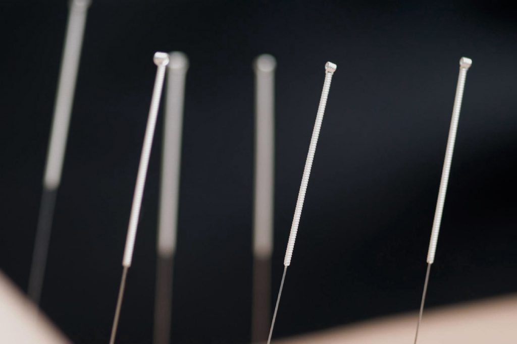 acupuncture en valais